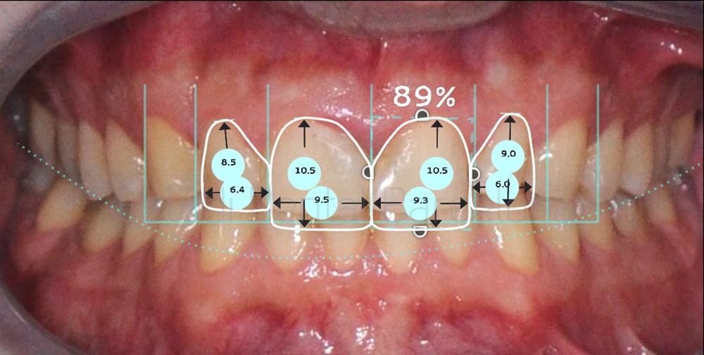 dientes-rotos-caso-clinico-carillas-de-porcelana-proporciones