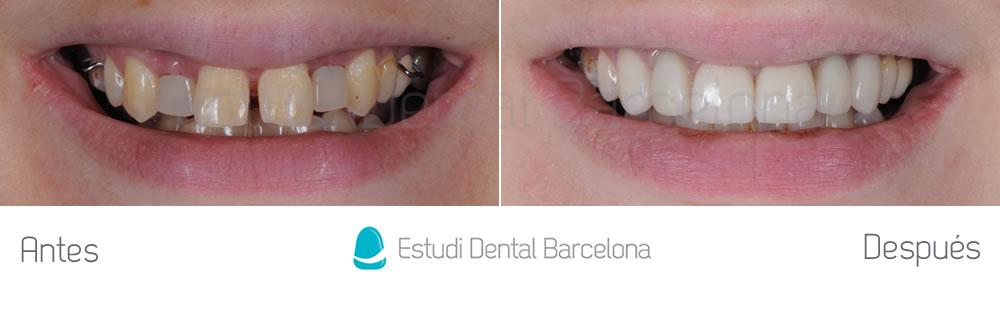Tipos de implantes dentales antes y despues de adelgazar