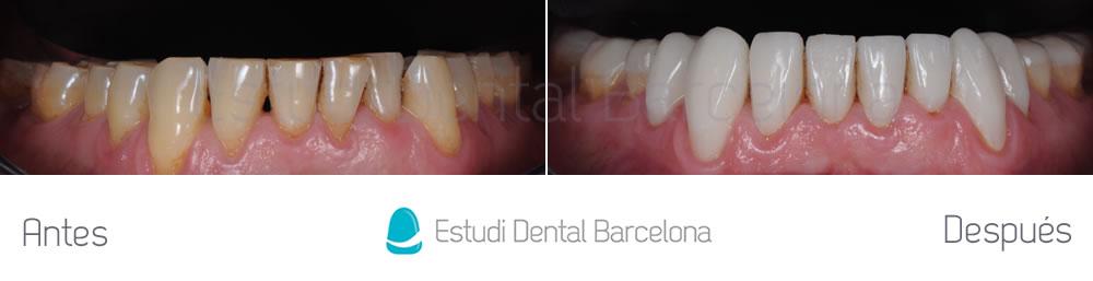 bruxismo-y-rejuvenecimiento-dental-antes-y-despues-arcada-inferior