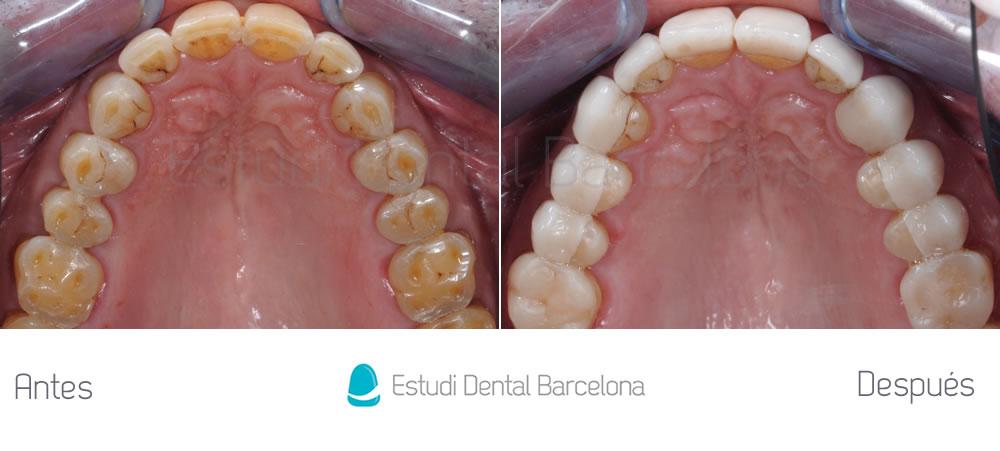 bruxismo-y-rejuvenecimiento-dental-antes-y-despues-interior-superior