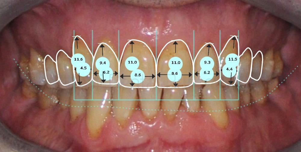bruxismo-y-rejuvenecimiento-dental-caso-clinico-de-carillas-de-porcelana