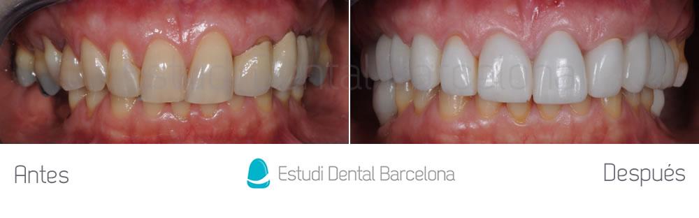 coronas-viejas-y-malposicion-dental-antes-y-despues-apretando