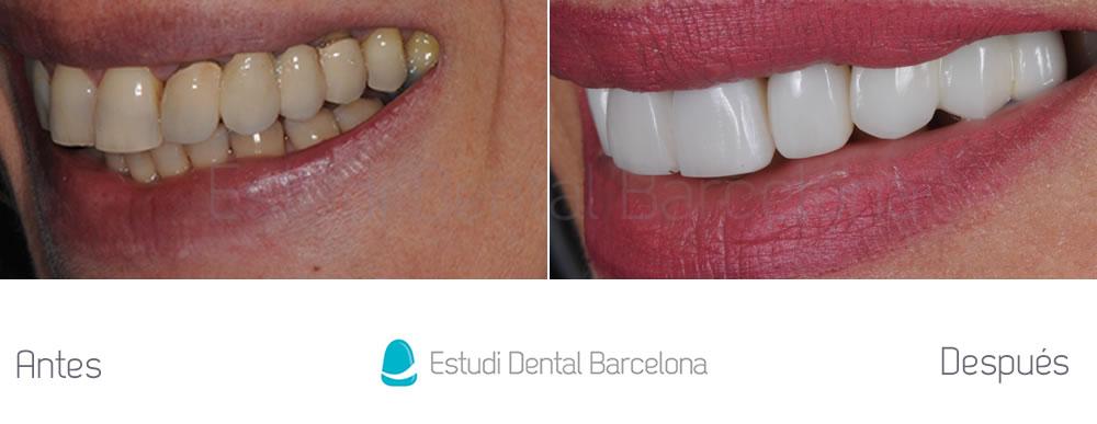 coronas-viejas-y-malposicion-dental-antes-y-despues-izquierda