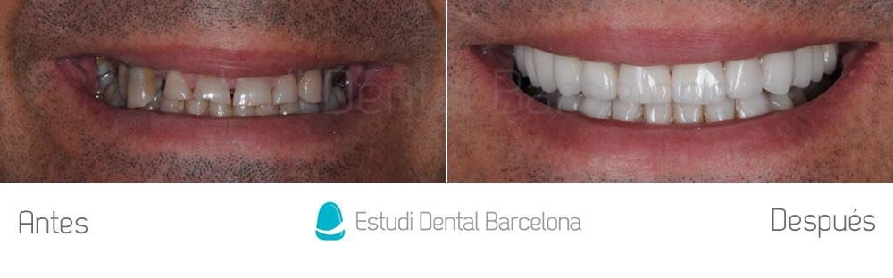 desgaste-dental-y-encias-retraidas-antes-y-despues-carillas-dentales-frente