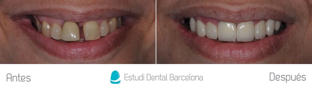 Diastema y corona vieja - caso clinico carillas dental - frente