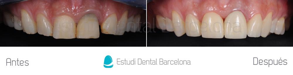 diastema-y-dientes-separados-antes-y-despues-carillas-dentales-arcada-superior