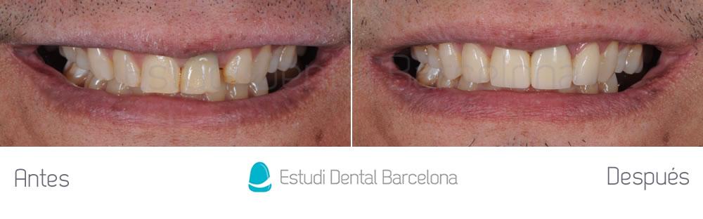 diastema-y-dientes-separados-antes-y-despues-carillas-dentales-frente