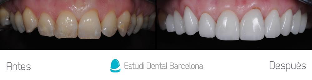 dientes-amarillos-y-desgastados-antes-y-despues-carillas-arcada-superior