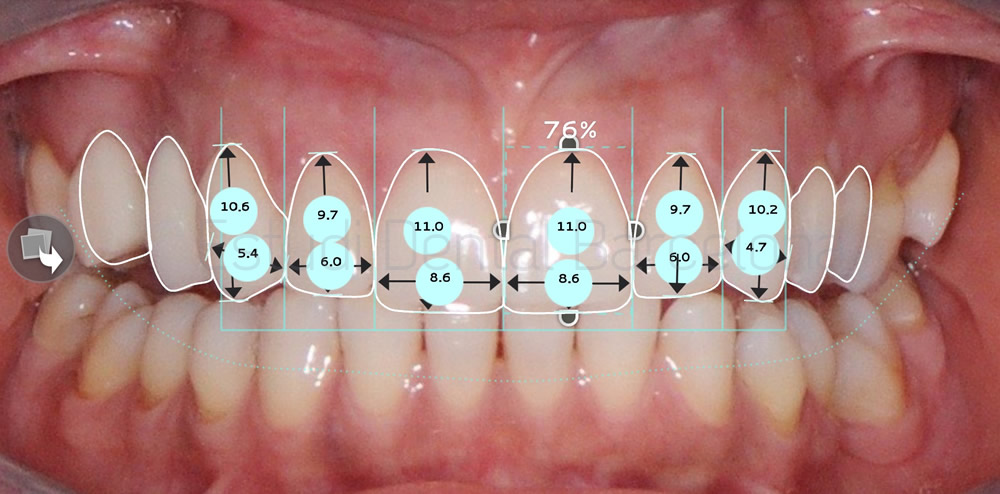 dientes-cortos-y-ausencia-dental-caso-clinico-carillas-de-porcelana-proporciones