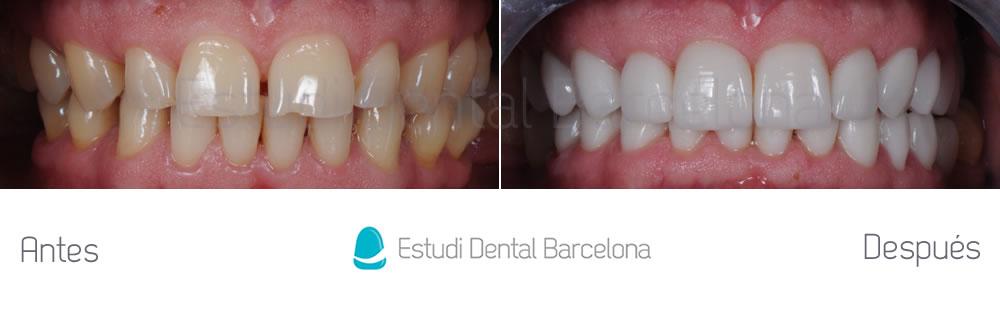 dientes-desgastados-y-diastema-antes-y-despues-carillas-dentales-aprentando