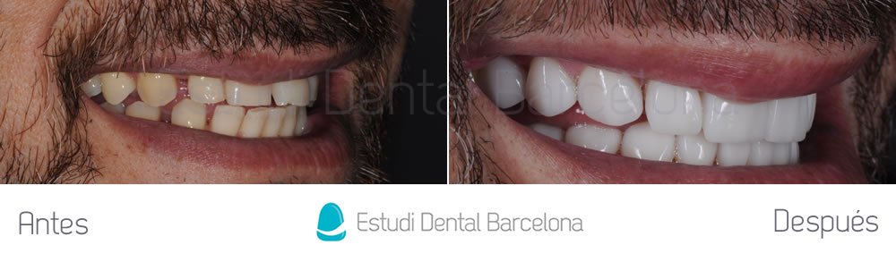 dientes-desgastados-y-diastema-antes-y-despues-carillas-dentales-derecha