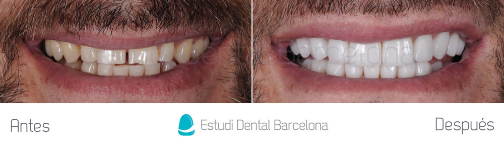 dientes-desgastados-y-diastema-antes-y-despues-carillas-dentales-frente