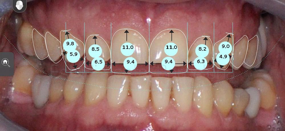 dientes-desgastados-y-diastema-antes-y-despues-carillas-dentales-proporciones1