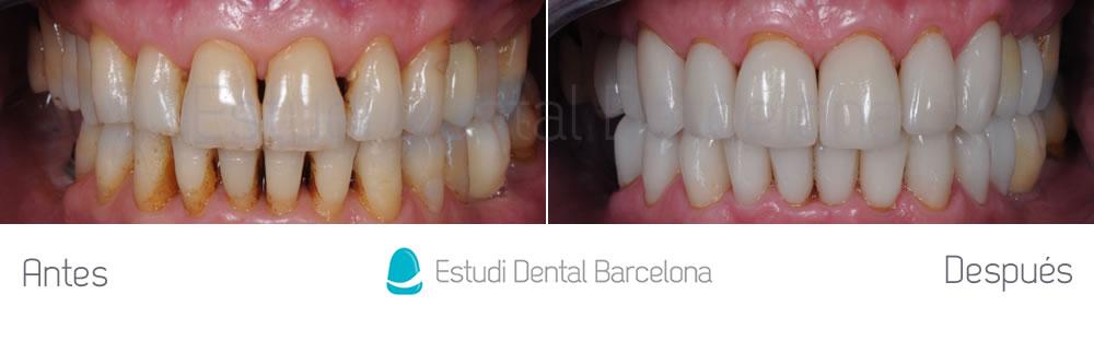 dientes-desgastados-y-manchas-antes-y-despues-carillas-dentales-apretando