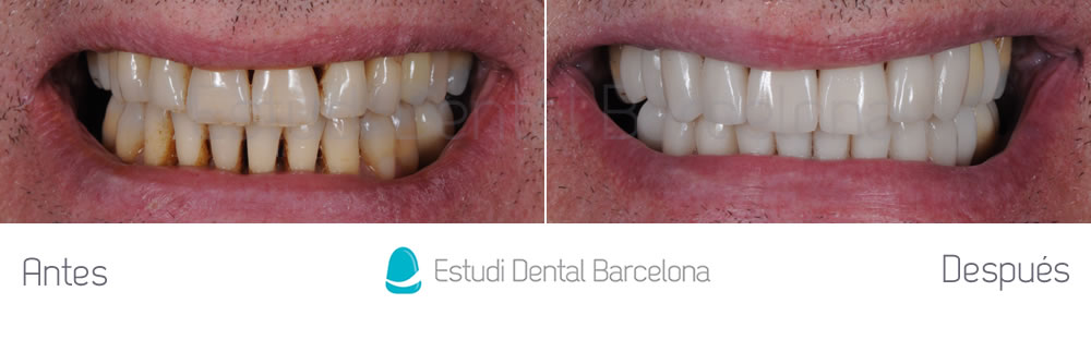 dientes-desgastados-y-manchas-antes-y-despues-carillas-dentales-frente