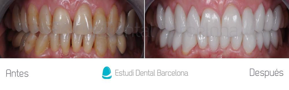 dientes-envejecidos-caso-clinico-carillas-de-porcelana-apretando