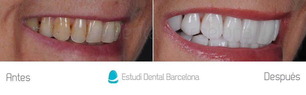 dientes-envejecidos-caso-clinico-carillas-de-porcelana-derecha