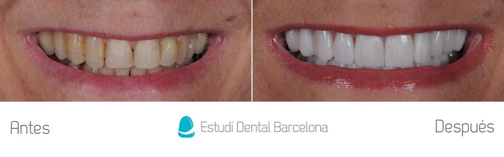 dientes-envejecidos-caso-clinico-carillas-de-porcelana-frente