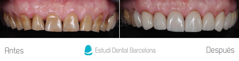 dientes-manchados-caso-clinico-carillas-dentales-arcada-superior
