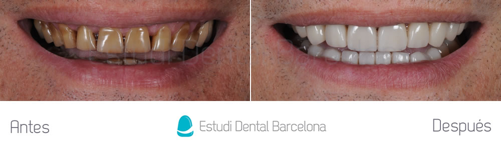 dientes-manchados-caso-clinico-carillas-dentales-frente