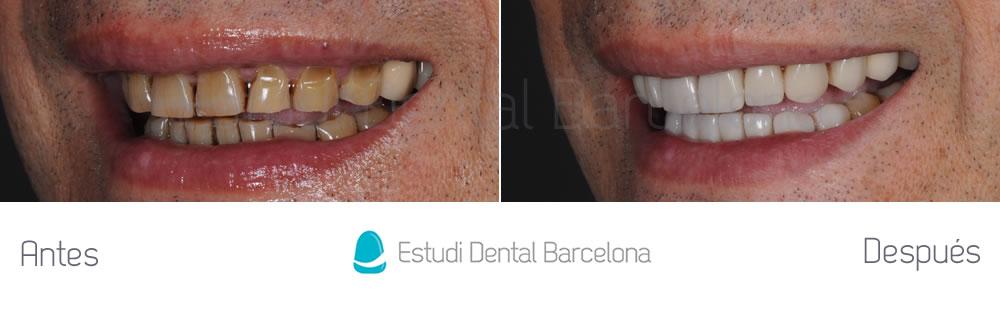 dientes-manchados-caso-clinico-carillas-dentales-izquierda