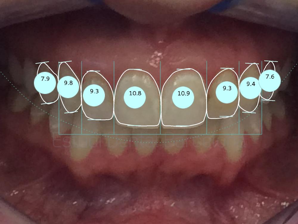 dientes-manchados-y-composite-viejo-antes-y-despues-carillas-proporciones
