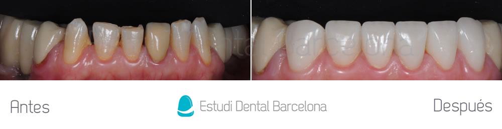 dientes-manchados-y-rotos-caso-de-carillas-antes-y-despues-arcada-inferior