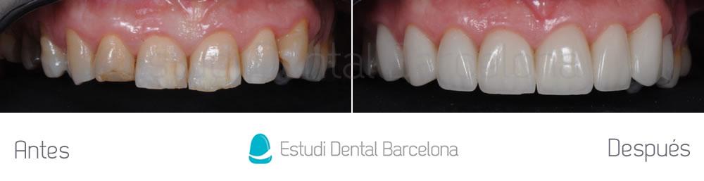 dientes-manchados-y-rotos-caso-de-carillas-antes-y-despues-arcada-superior