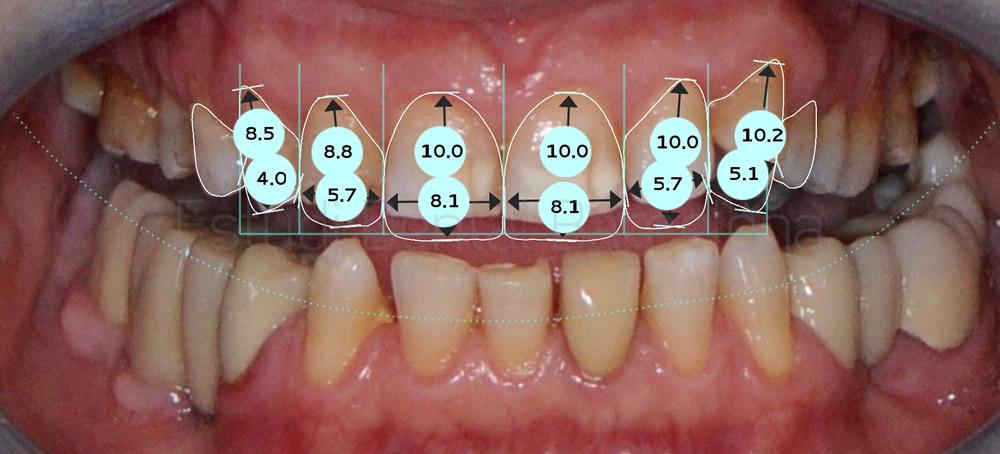 dientes-manchados-y-rotos-diagnostico-de-carillas-proporciones
