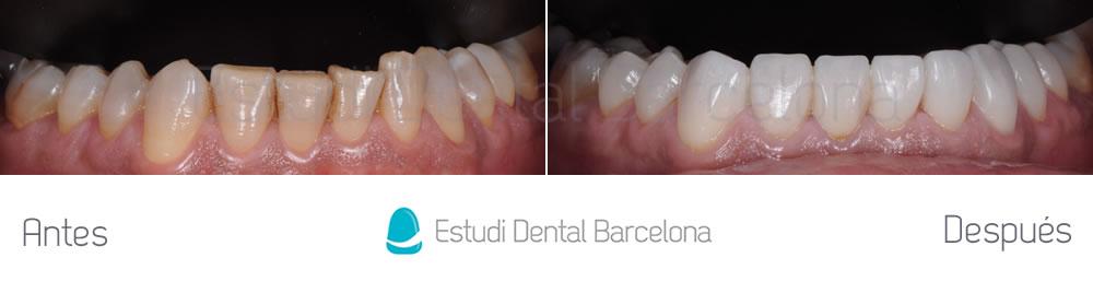 dientes-oscuros-y-malposicion-dental-antes-y-despues-arcada-inferor