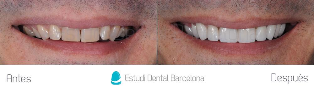 dientes-oscuros-y-malposicion-dental-antes-y-despues-frente