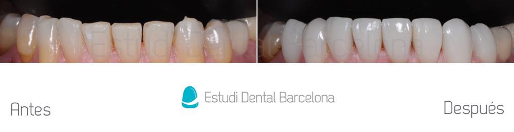 dientes-oscuros-y-rejuvenecimiento-de-sonrisa-caso-de-carillas-antes-y-despues-arcada-inferior