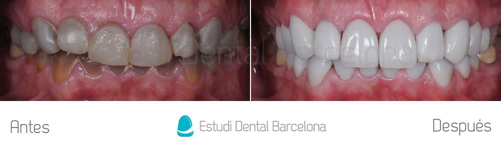 dientes-oscuros-y-tetraciclinas-caso-clinico-carillas-apretando