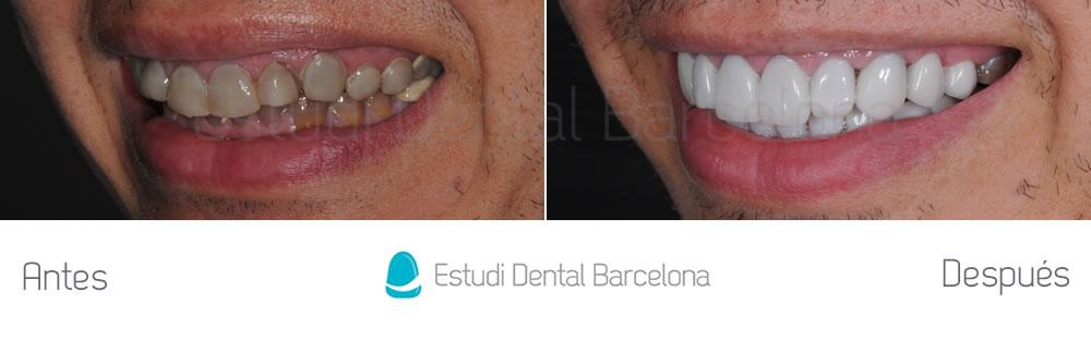 dientes-oscuros-y-tetraciclinas-caso-clinico-carillas-izquierda
