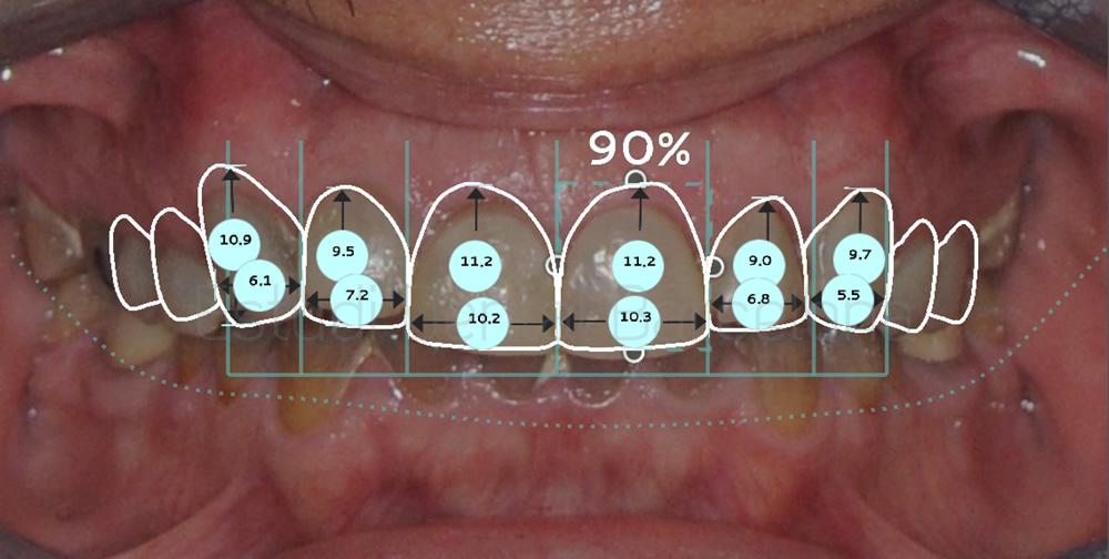 dientes-oscuros-y-tetraciclinas-caso-clinico-carillas-proporciones
