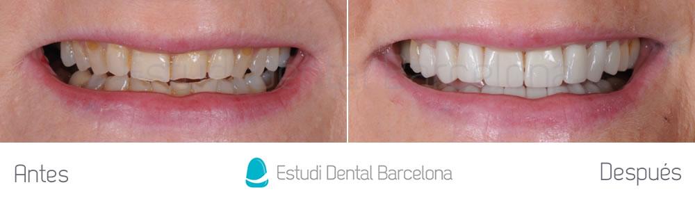 dientes-rotos-y-desgastados-antes-y-despues-carillas-dentales-frente