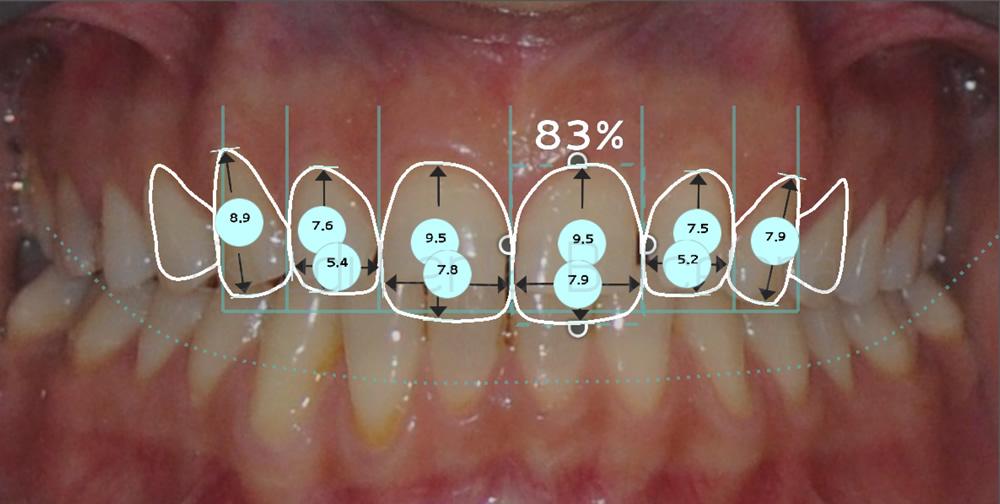 espacios-abiertos-entre-dientes-carillas-dentales-antes-y-despues-proporciones