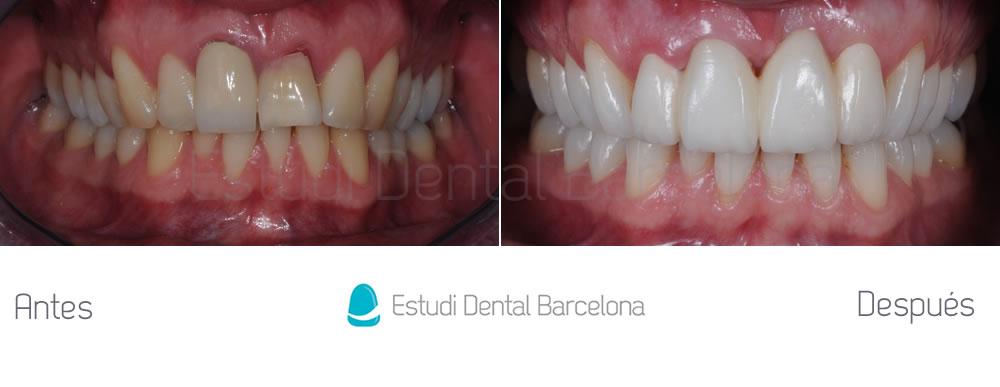 fractura-dental-y-corona-vieja-antes-y-despues-carillas-apretando