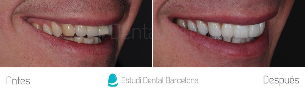 fractura-dental-y-corona-vieja-antes-y-despues-carillas-derecha