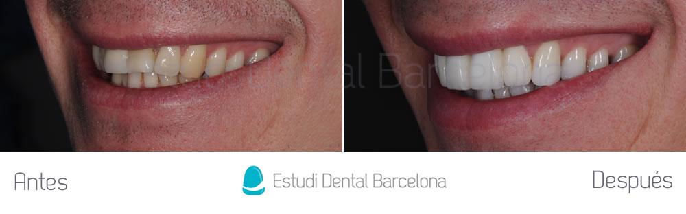 fractura-dental-y-corona-vieja-antes-y-despues-carillas-izquierda