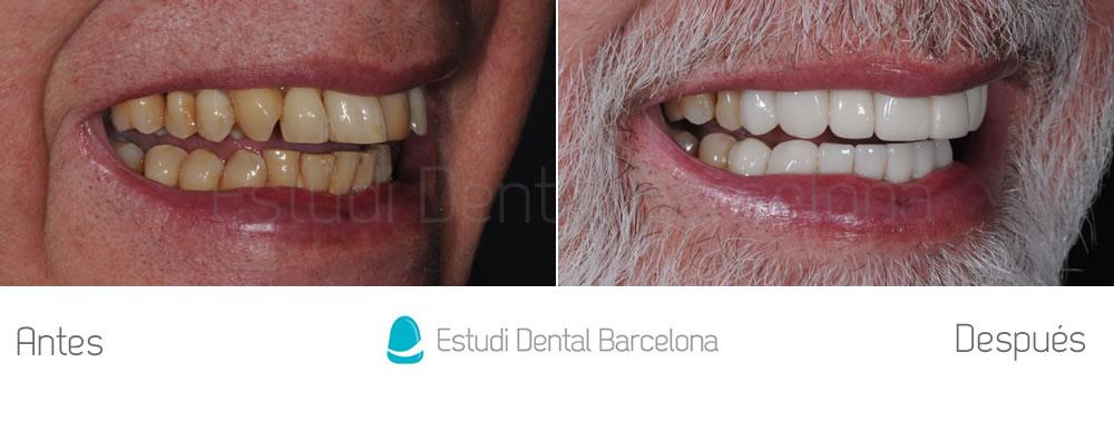 malposicion-dental-y-dientes-amarillos-antes-y-despues-carillas-derecha