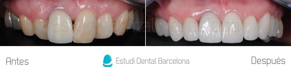 malposicion-y-rejuvenecimiento-dental-antes-y-despues-carillas-dentales-arcada-superiorjpg