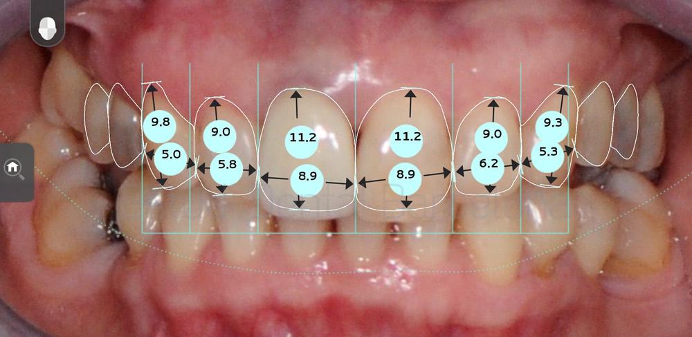 malposicion-y-rejuvenecimiento-dental-antes-y-despues-carillas-dentales-proporciones
