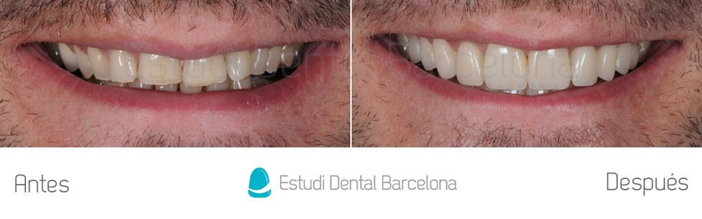caso-mejorar-dientes-desgastados-con-carillas-dentales-frente
