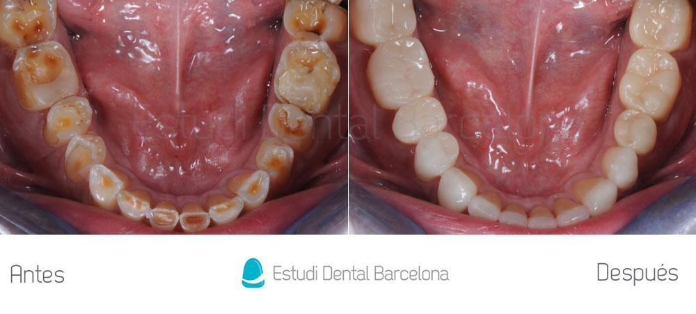 caso-mejorar-dientes-desgastados-con-carillas-dentales-interior-2