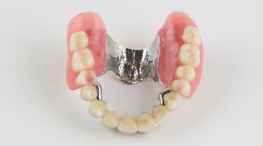 Protésis dentales y restauración provisional
