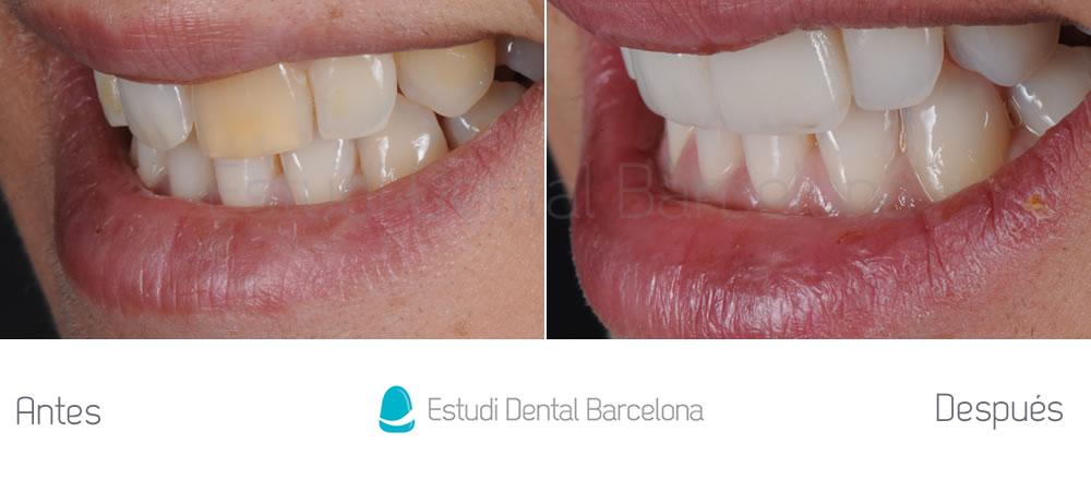 Corregir-dientes-oscuros-con-carillas-de-porcelana-y-blanqueamiento-caso-antes-y-después-izquierda
