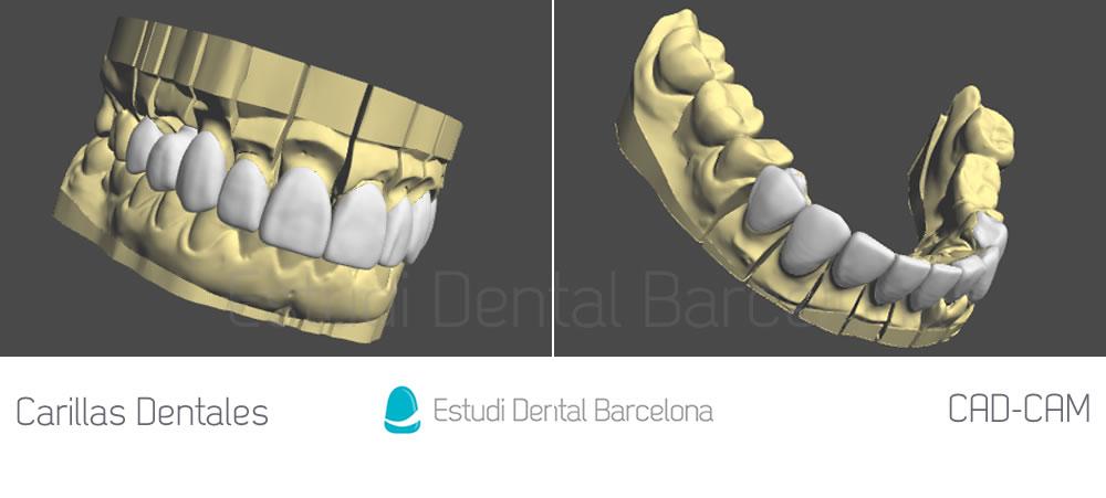 Cad-cam-carillas-dentales-simulación-3D-por-ordenador-caso-clínico