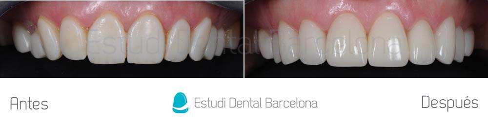 Cambiar-carillas-de-composite-por-carillas-de-porcelana-caso-clínico-arcada-superior