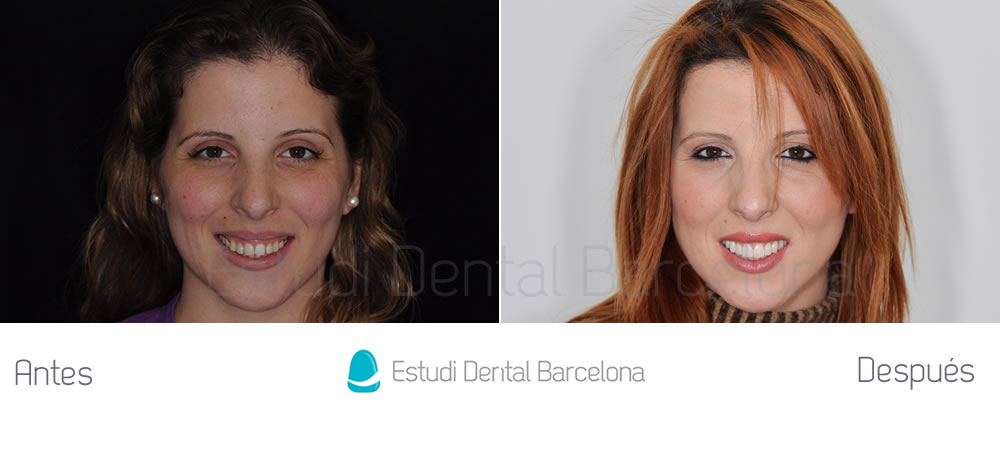 Diseño-de-sonrisa-con-carillas-de-porcelana-implantes-dentales-y-Invisalign-caso-clínico